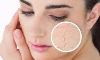 冬天如何防止皮肤干燥 教你几个小窍门